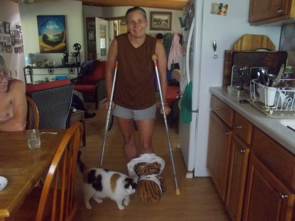 Marjory on Crutches with Snake Bite
