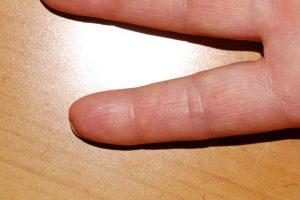 Renee's Finger 5