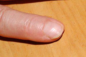 Renee's Finger 6