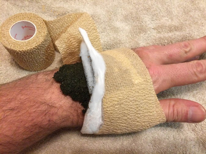 Making and Using a Poultice 1