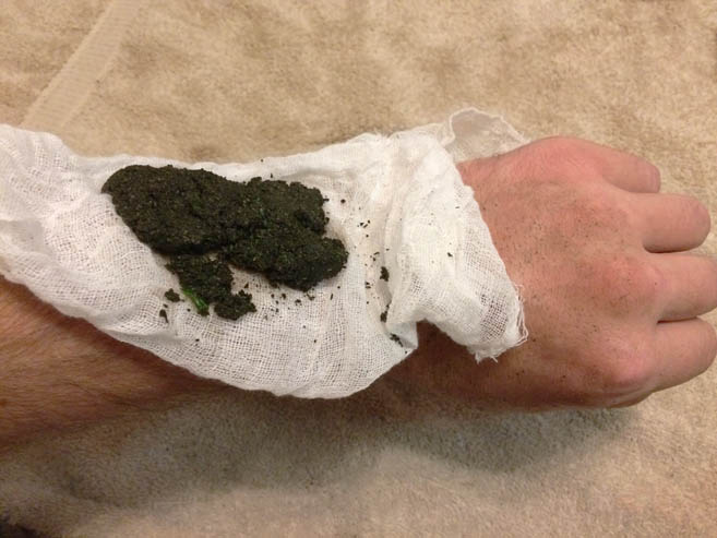 Making and Using a Poultice 8